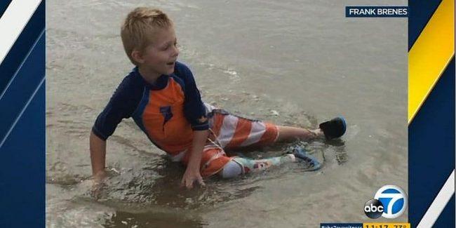 Shark Tank's Robert Herjavec heartbroken over boy's prosthetic leg theft. Watch what he does!