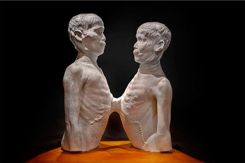 """Death Cast of """"Siamese Twins"""""""