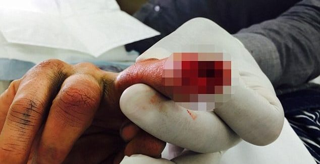 Johnny Depp injured finger