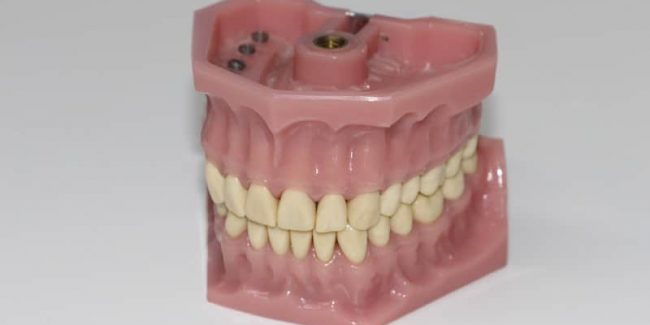 False teeth, one of the things a plumber found flushed down a toilet