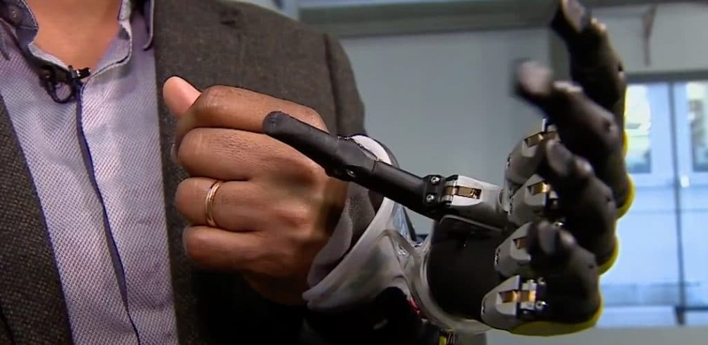 Artificial limb technology is becoming ever more sophisticated