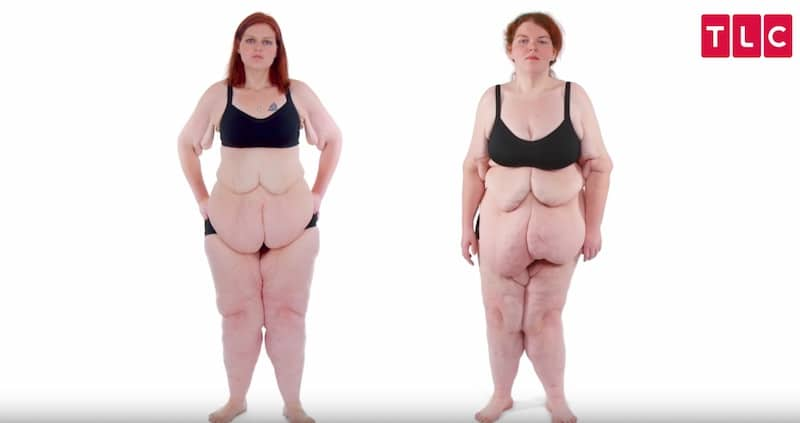 Sisters Melissa and Jessica, who lost 605-lb between them but now suffer from too much skin