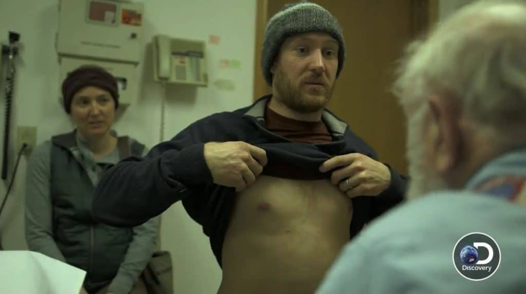 Eivin Kilcher's rib is broken it seems based on the tease Pic credit: Discovery