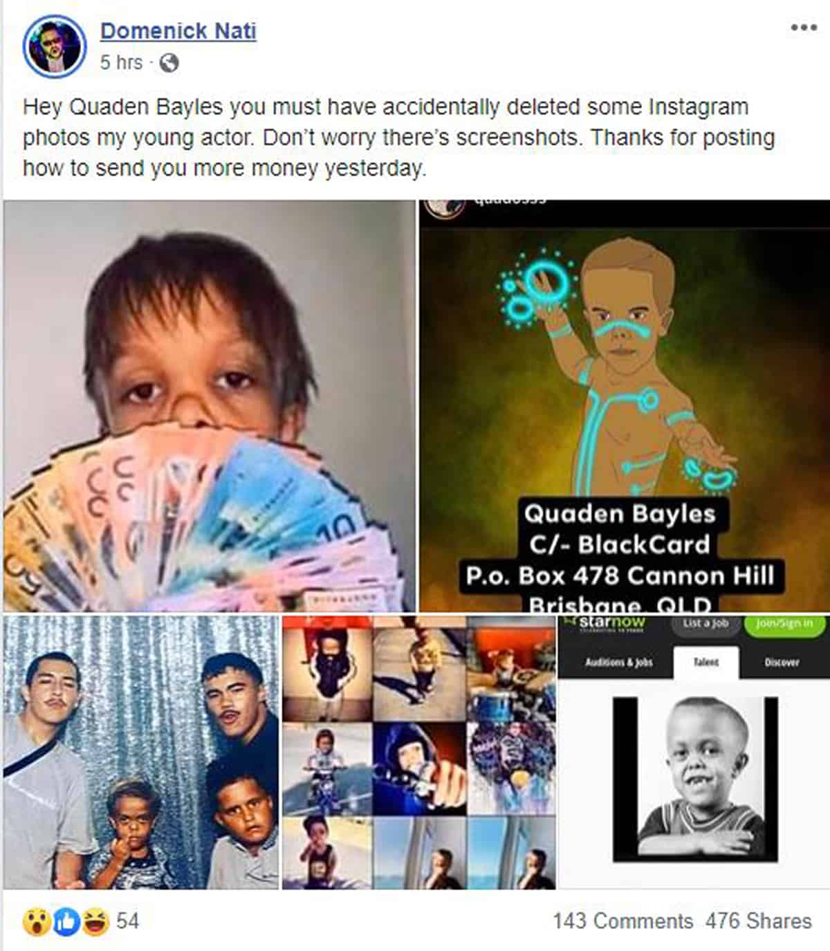 Rumor buster: Quaden Bayles is not 18, as bullied boy gains sympathy from the world