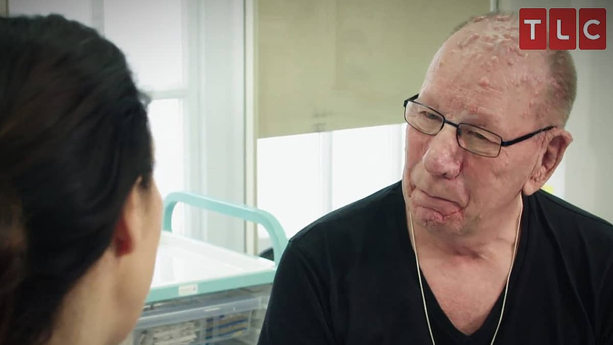 Victor is now 68 and wants to see if he can get rid of this skin disease on Save My Skin. Pic credit: TLC.