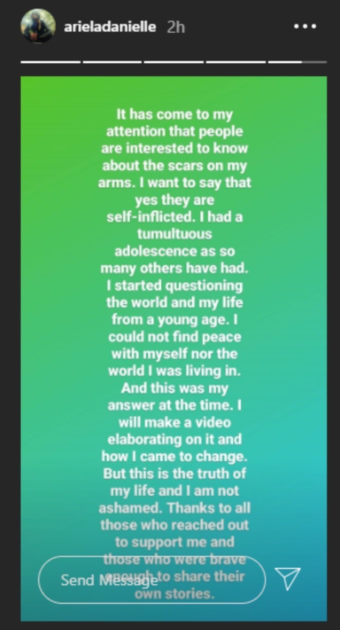 Ariela addresses her scars