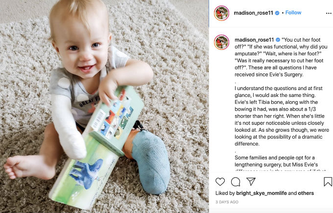 Maddie fends daughter Evie's surgery post
