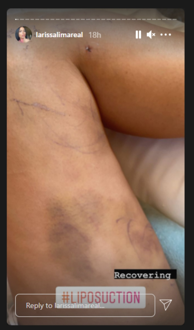 Larissa Lima posts photo of her bruised legs to Instagram stories after having lipo procedure done.