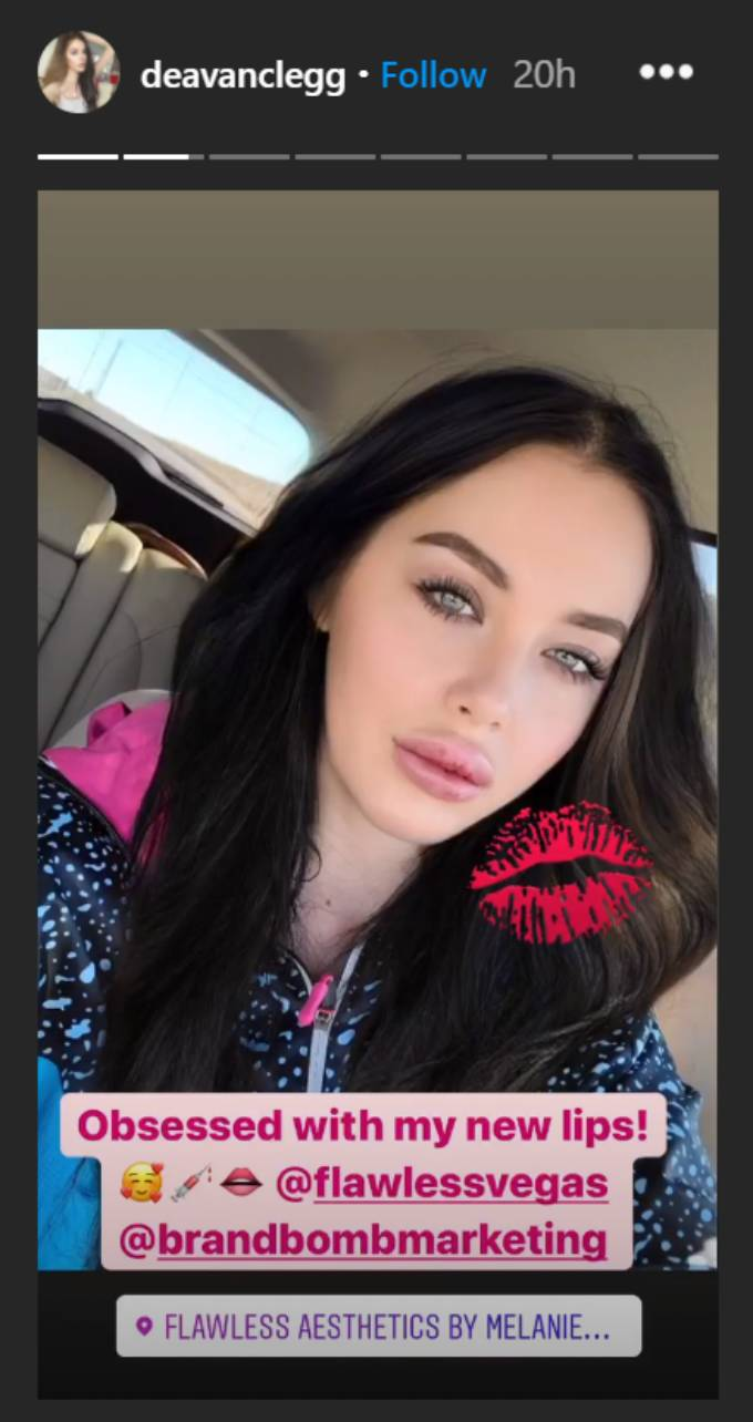 Deavan Clegg shows off her new lips in a car selfie.